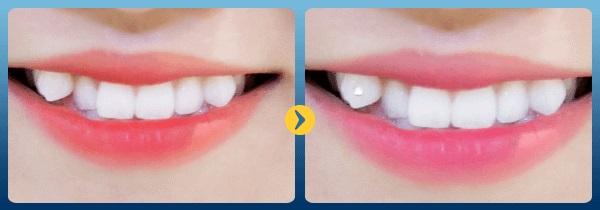 Những ưu điểm của trồng răng khểnh thẩm mỹ.