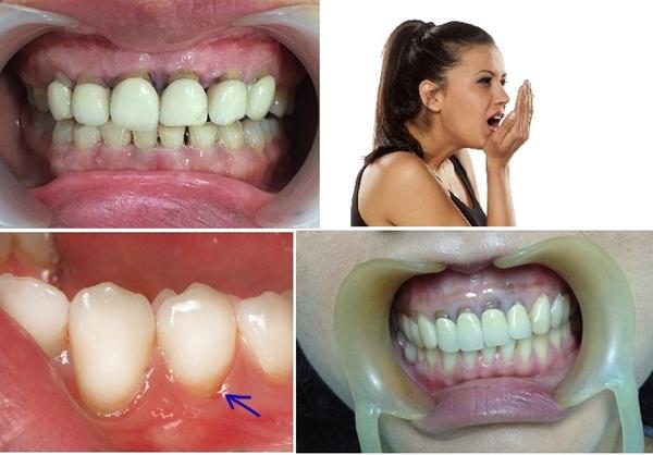 Biến chứng bọc răng sứ kém chất lượng