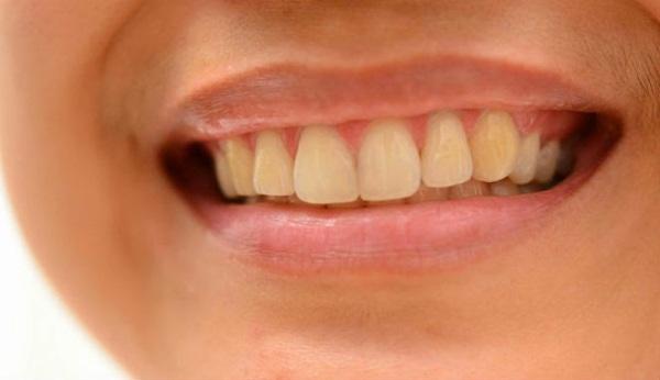 Nhiều người co răng vàng tự nhiên do di truyền