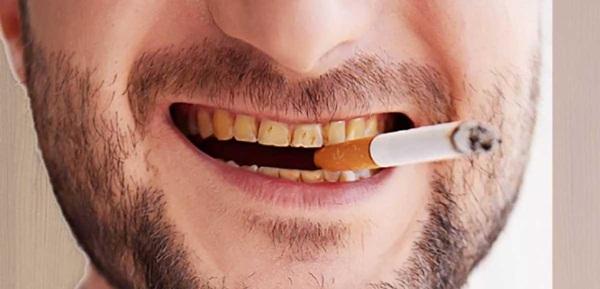 Thuốc lá gây răng ố vàng
