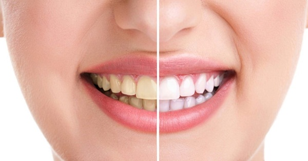 Cách để chữa răng ố vàng?
