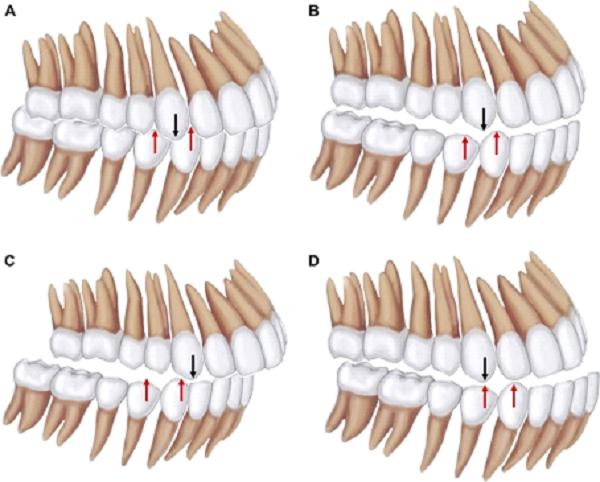 Tương quan chuẩn của 2 hàm răng