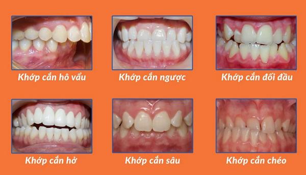 Hình ảnh minh họa của những hàm răng bị sai lệch