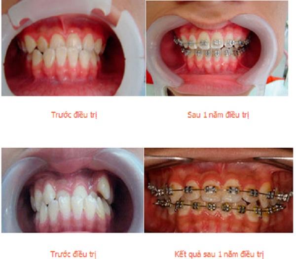 Niềng răng khắc phục hiệu quả vấn đề hàm răng bị sai lệch