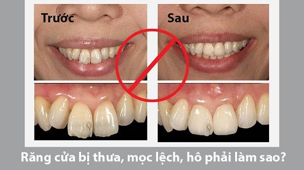 Răng cửa bị lệch là gì?