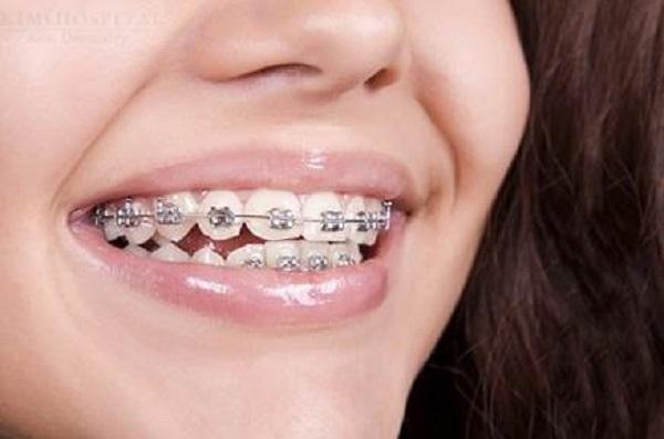 Phương pháp niềng răng bằng mắc cài kim loại