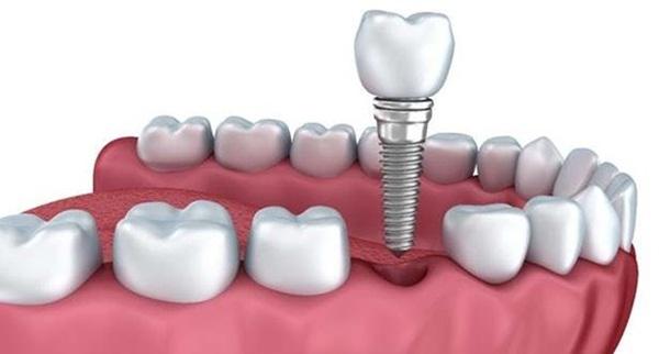 Trường hợp trồng răng Implant có thể thực hiện niềng răng