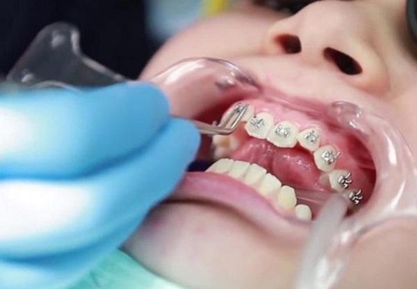 Thực hiện niềng răng sau khi trồng răng Implant