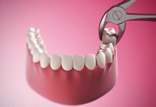 Nhổ răng hàm số 7 có nên không?