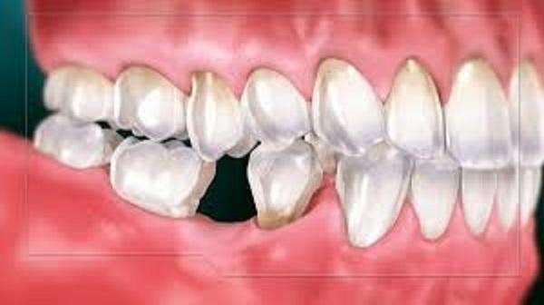 Khi răng hàm số 7 mất đi tạo nên một khoảng trống