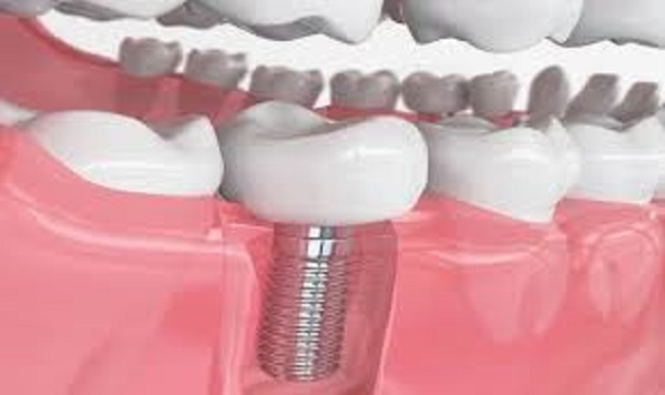 Trồng răng số 7 bằng phương pháp Implant là giải pháp tối ưu