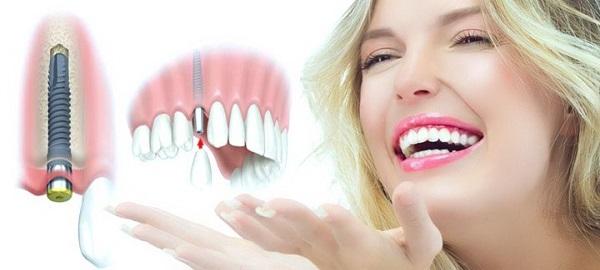 Phương trồng răng Implant nguyên hàm thẩm mỹ không đau