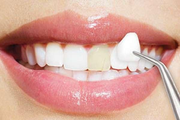 Tuổi thọ của răng sứ Veneer là bao nhiêu?