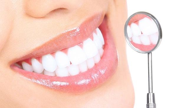 Răng sứ Veneer hoàn thiện