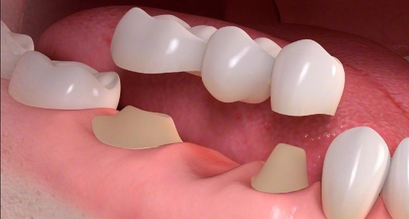 Phương pháp trồng răng số 6 bằng cầu sứ an toàn