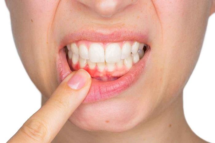 Nguyên nhân khiên răng bị ê buốt là do tuột nướu.