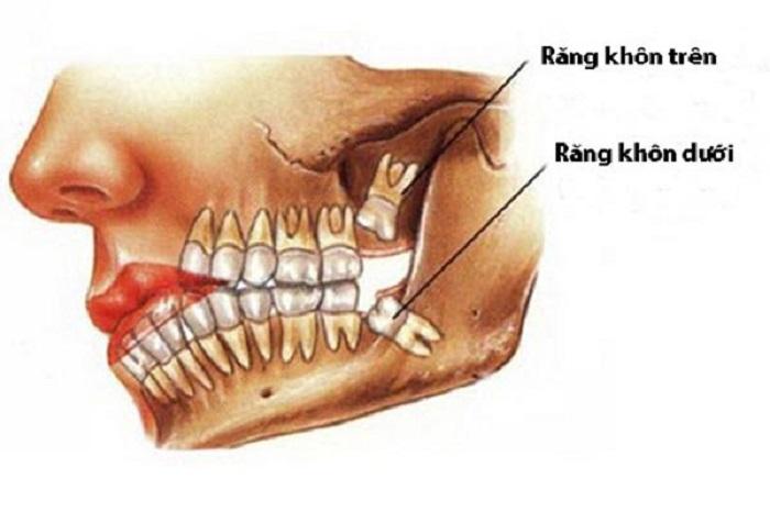 Liệu bạn đã biết răng số 8 mọc ở vị trí cuối cùng ở mỗi góc hàm?