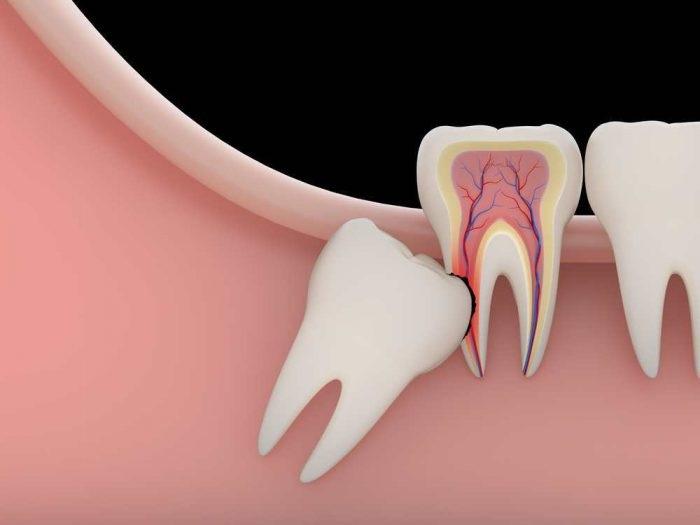 Các chuyên gia nhận định không nhất thiết phải trồng lại răng số 8.