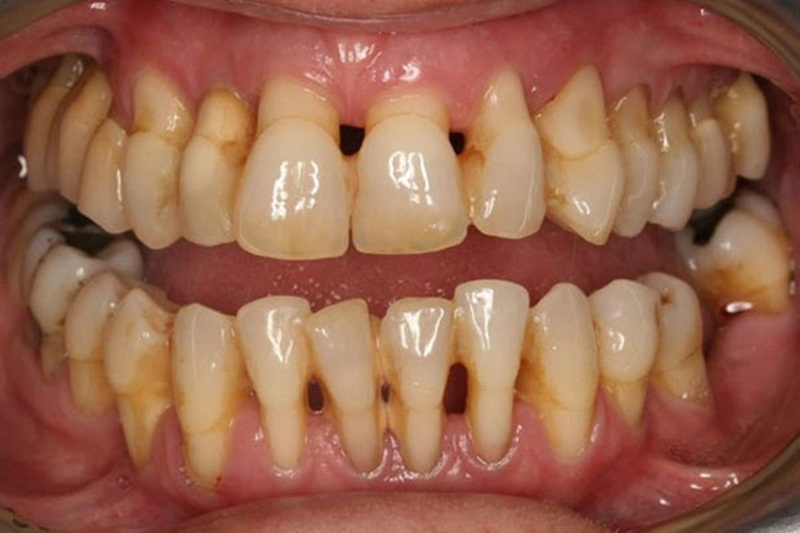 Bệnh về miệng: Bệnh nha chu