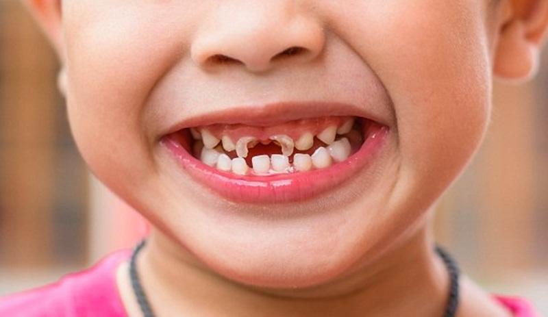 Bệnh lý sâu răng rất thường gặp ở trẻ em