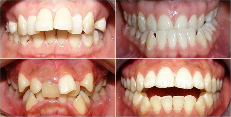 Tình trạng răng mọc lệch lạc, hô, móm