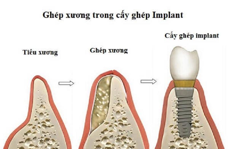 Tại sao cần phải ghép xương răng trong Implant