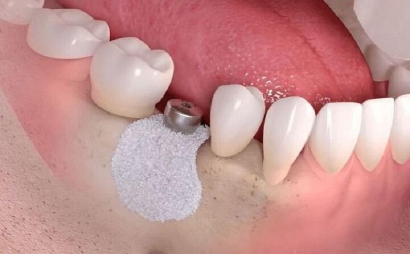 Hình ảnh minh họa sau khi đã ghép xương để lắp trụ Implant