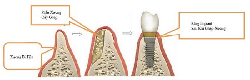 Hình ảnh minh họa răng Implant sau khi đã ghép xương