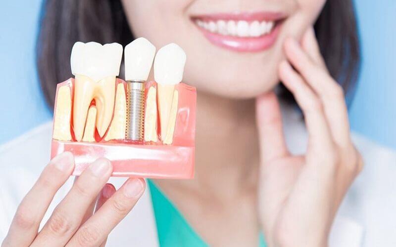 Răng đau nhức kéo dài sau khi cắm ghép implant thì phải làm sao?