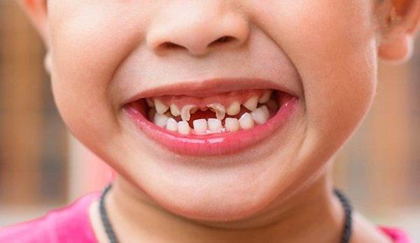 Lưu ý cho phụ huynh khi khám răng cho bé