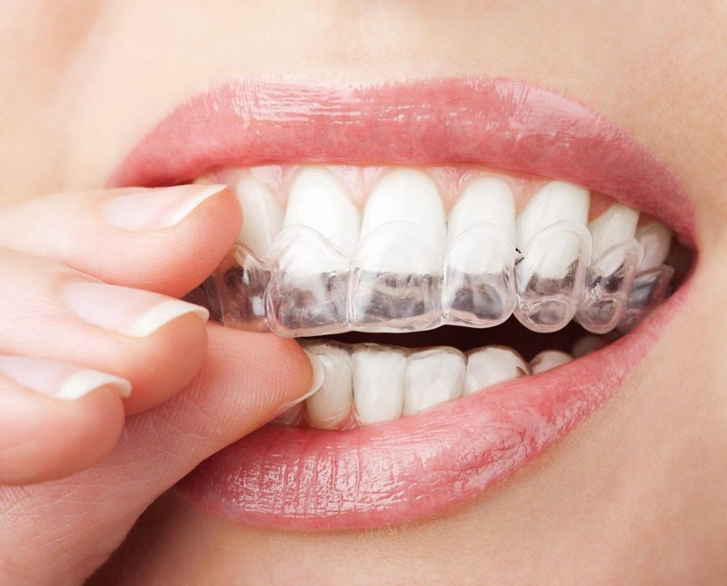 Niềng răng Invisalign có phải là giải pháp chỉnh nha tối ưu?
