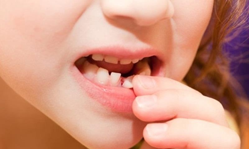 Răng hàm là gì?