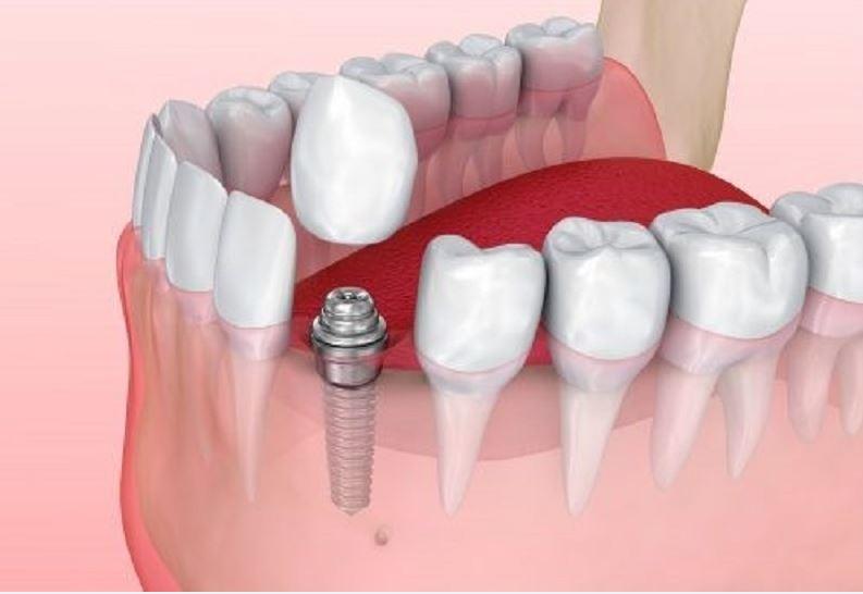 Các trụ Implant Hàn Quốc có chất lượng tốt