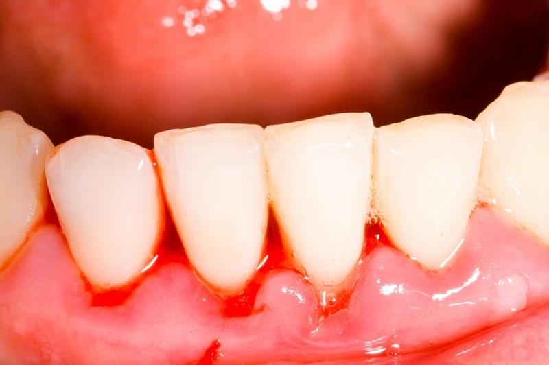 Chảy máu nướu răng xảy ra là vì sao?