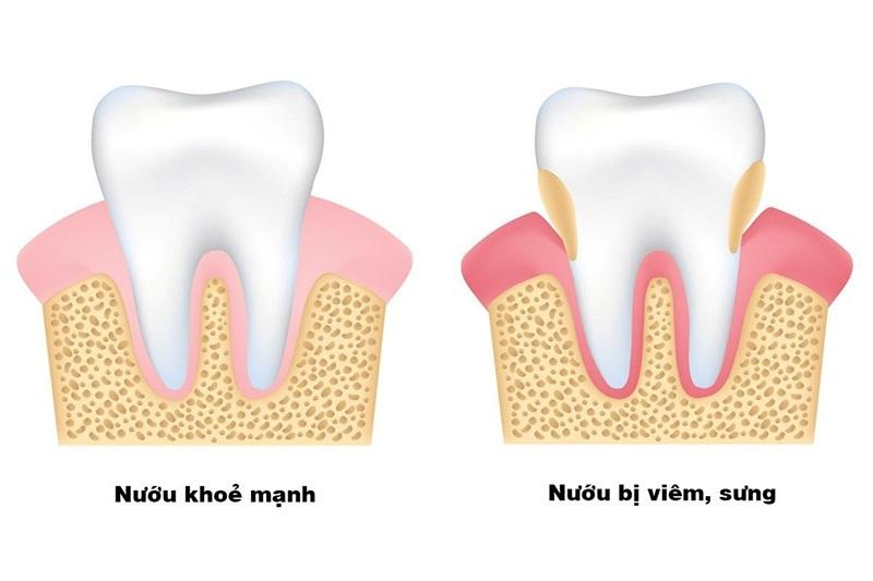 Chảy máu nướu răng có thể dẫn đến những vấn đề gì?