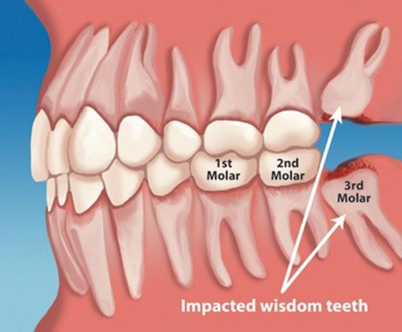 Vị trí răng khôn ở trong hàm
