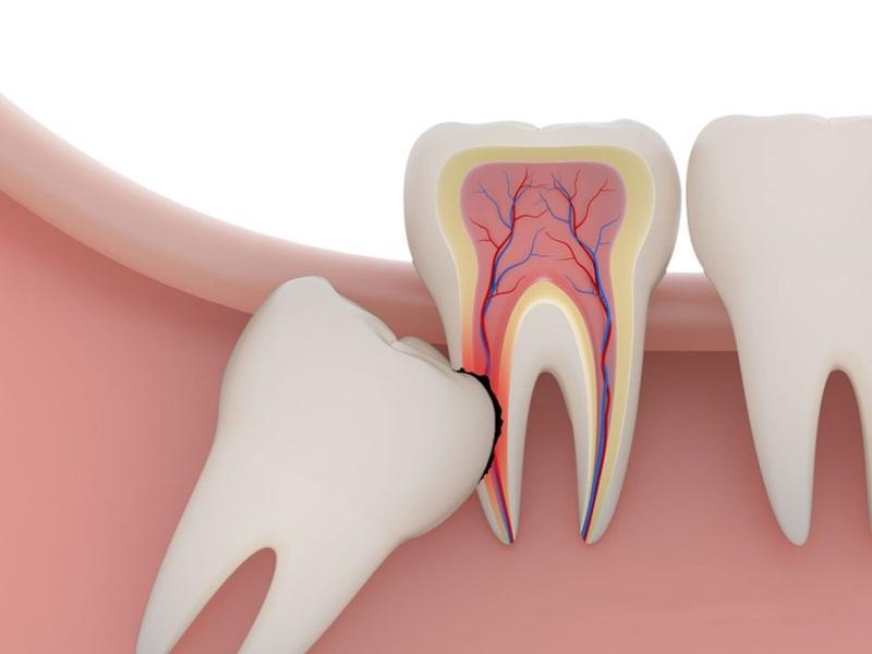 Hình ảnh mô tả cho hiện tượng răng khôn mọc lệch cần phải xử lý