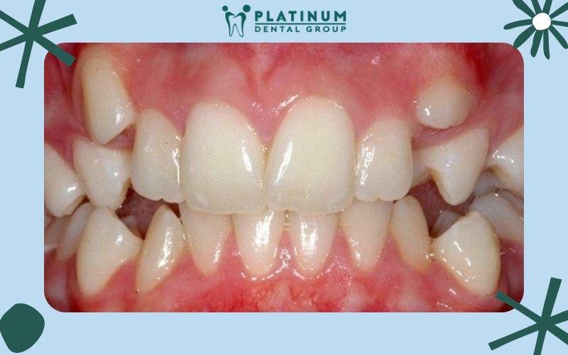Khái niệm răng mọc thừa là gì ?