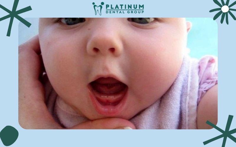 Răng sữa là răng tạm thời xuất hiện khi trẻ còn nhỏ