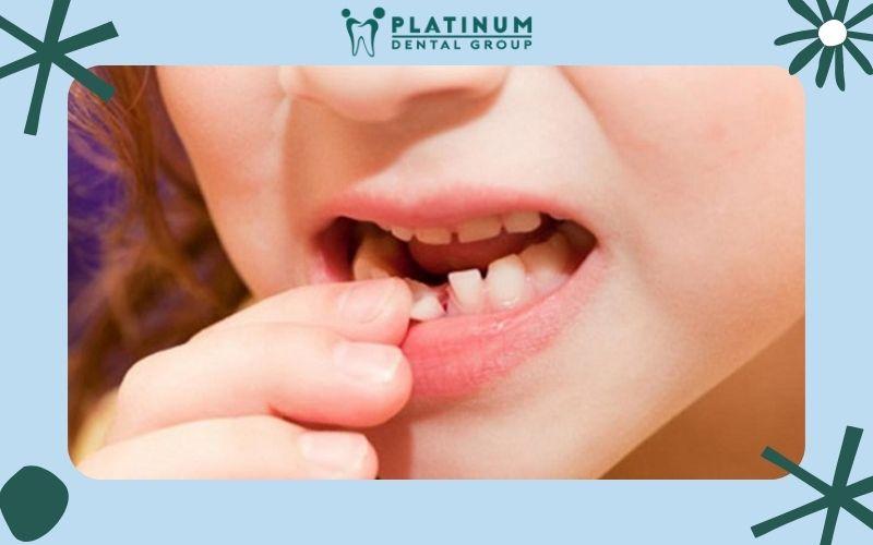 Quá trình thay răng sữa ở bé