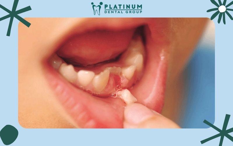 Những biến chứng khi bé thay răng sữa