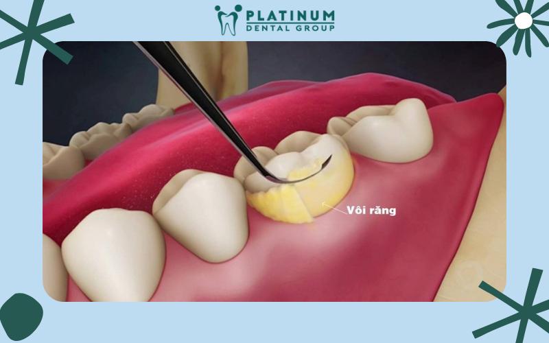 Cạo vôi răng định kỳ để hạn chế khả năng mắc bệnh viêm chân răng