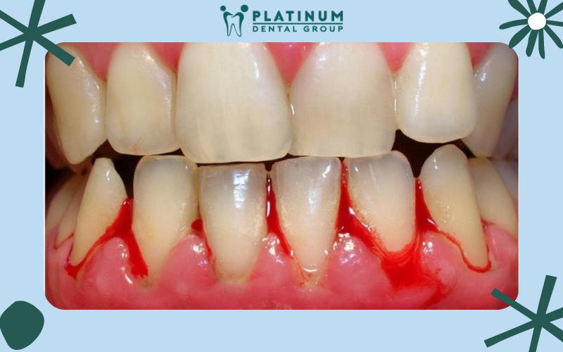 Một số nguyên nhân làm chân răng bị viêm