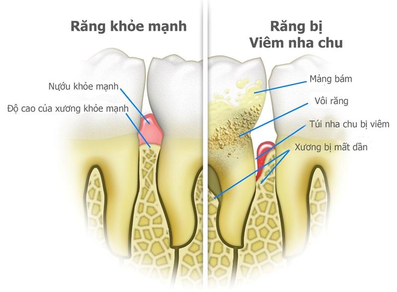 Răng bị viêm (nha chu) sẽ gặp những vấn đề gì?