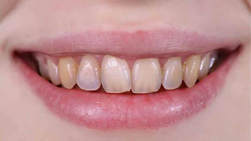 Men răng yếu có thể do di truyền hoặc chăm sóc không đúng cách