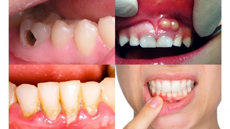 Các bệnh lý răng miệng liên quan cần phải được điều trị trước khi trồng răng