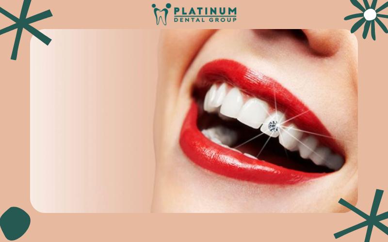 Làm răng đính kim cương có thực sự tốt?