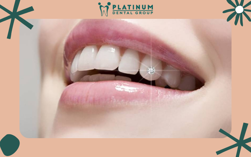 Làm răng đính kim cương kích thước bao nhiêu là phù hợp?