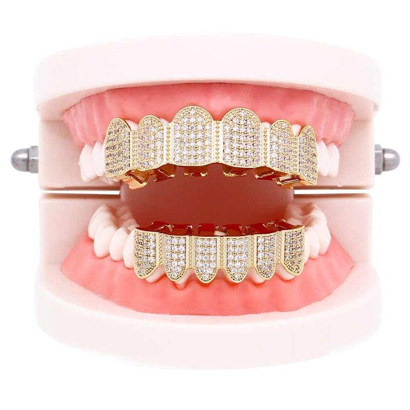 Làm răng mạ vàng là gì?