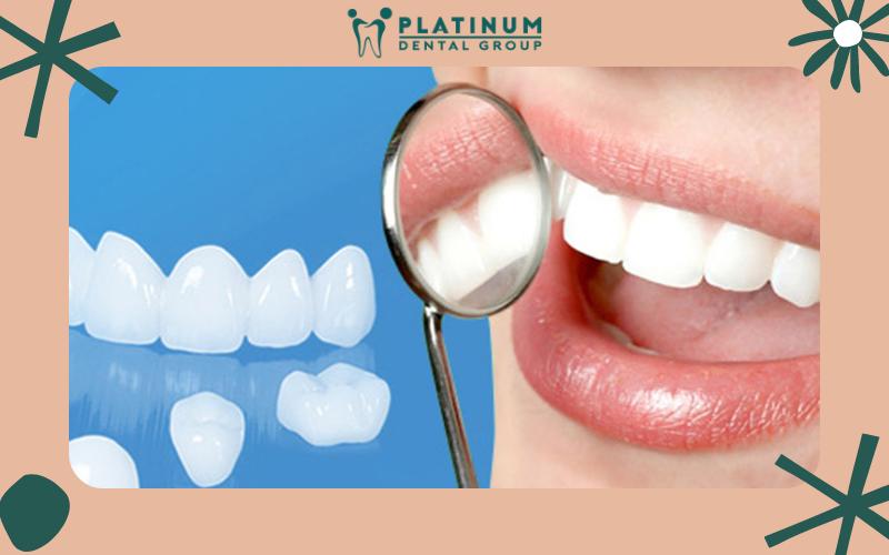 Nguyên nhân và cách khắc phục khi răng giả bị hôi